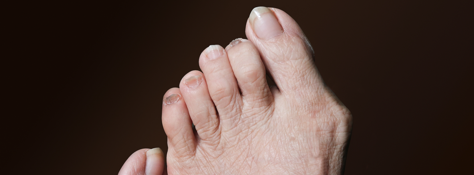 A close-up of a person's bunion
