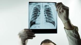 Broken ribs after a car accident