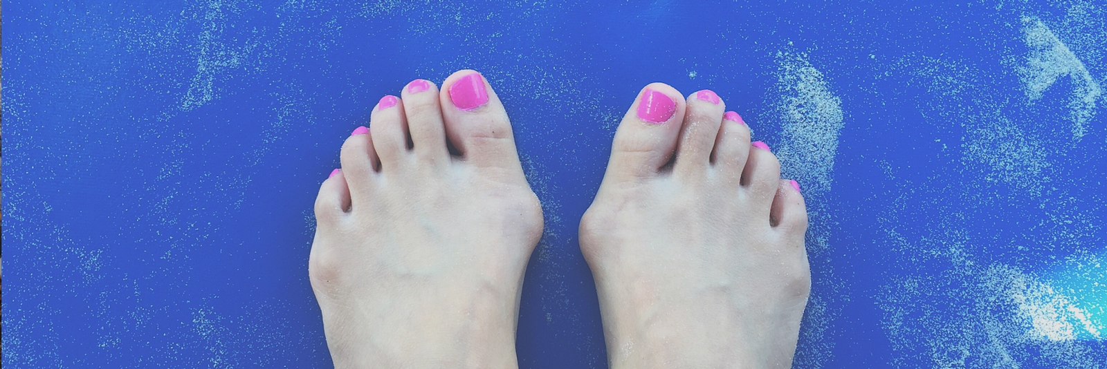 Woman's feet with bunions on them