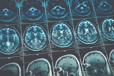 Brain Scan Results