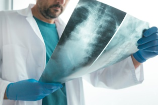 Spinal injury after a car accident