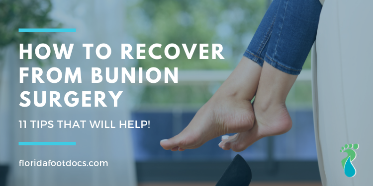 How to recover from bunion surgery
