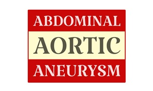 Abdominal aortic aneurysm Neblett, Beard and Arsenault