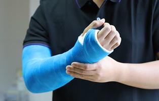 Compensation for a broken arm Neblett, Beard and Arsenault