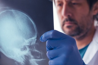 Doctor Holding a Scan of a Skull Fracture Neblett, Beard and Arsenault