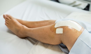 Knee replacement malpractice