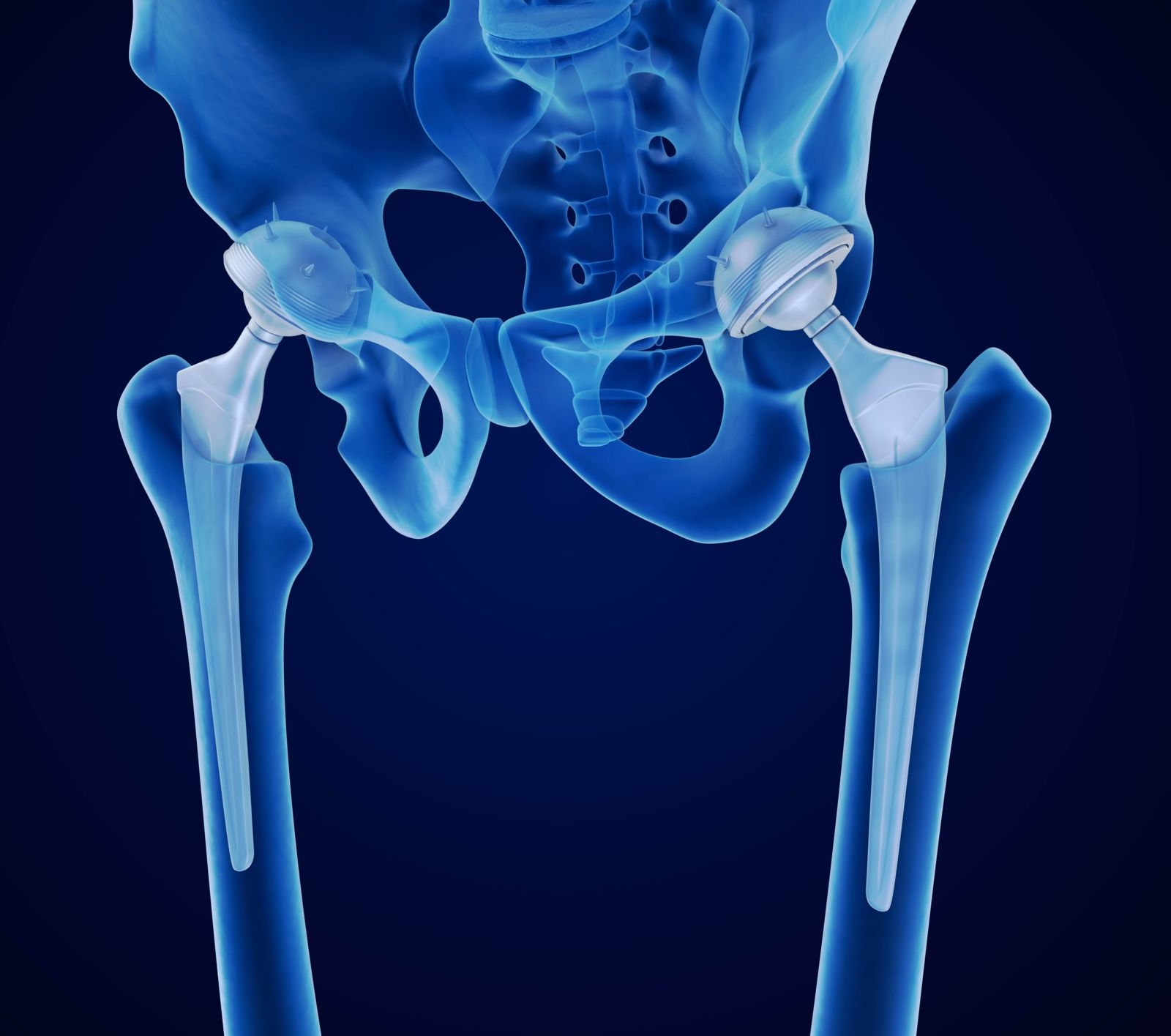 DePuy Pinnacle Metal-On-Metal Hip Implant