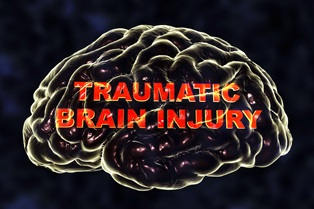 Motorcycle crash brain injuries
