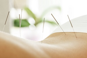 Female back with steel needles during acupuncture therapy