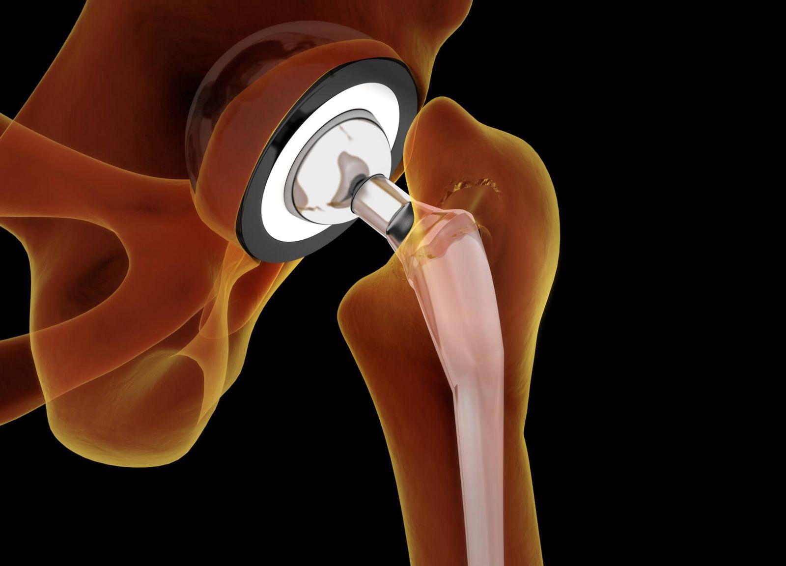 Hip Implant Device