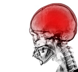 Workplace accidents and traumatic brain injuries