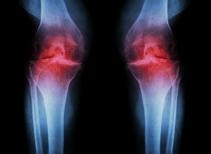 X-ray image of knees in pain