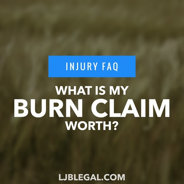 What is my Burn Injury Claim Worth?