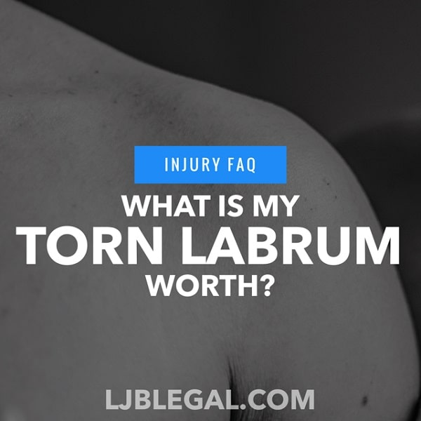 What is My Torn Labrum Worth?