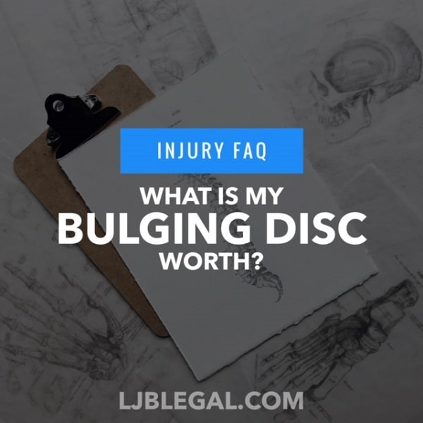 What is a bulging disc claim worth?