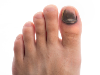 Black Toenail, nail fungus Haro Podiatry Center