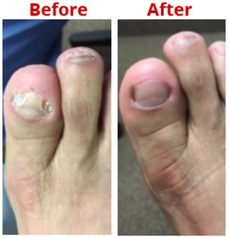 Toenail Fungus Treatment Haro Podiatry Center
