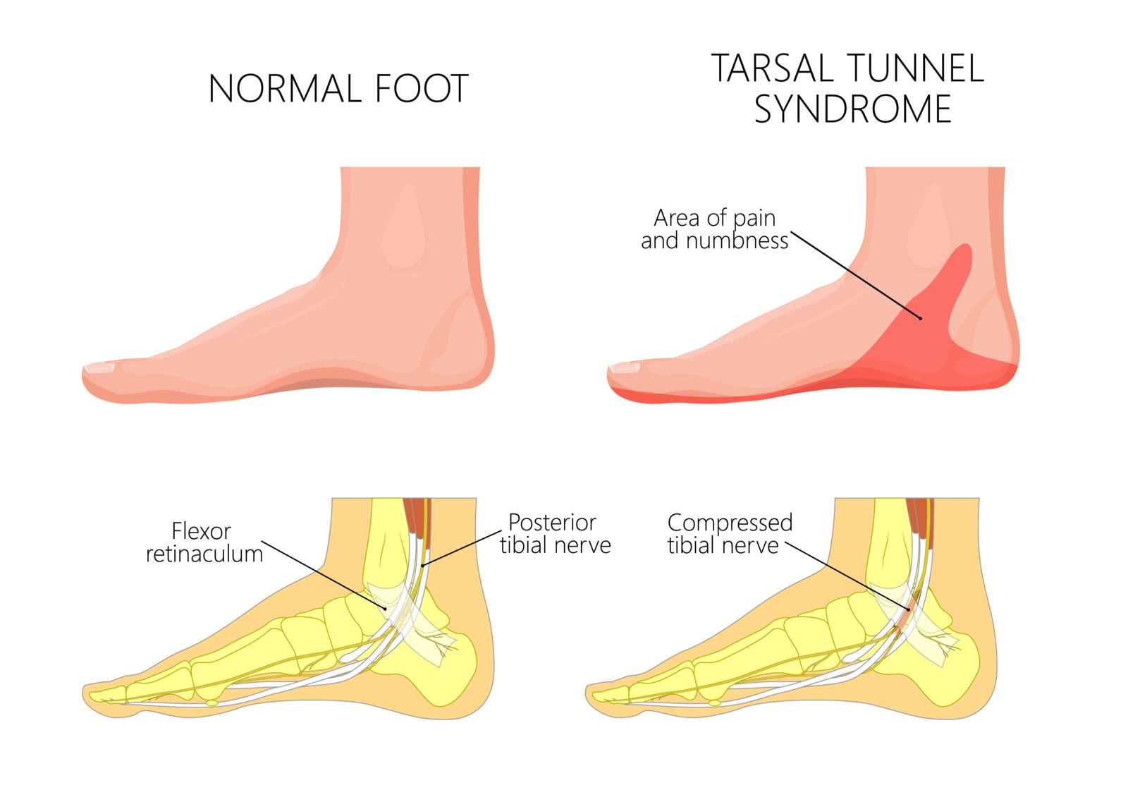Tarsal Tunnel Syndrome Haro Podiatry & Laser Center