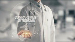 Doctor Presenting Compartment Syndrome