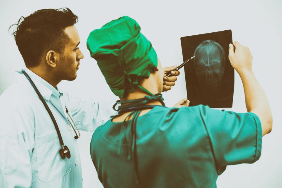 x-ray head injury
