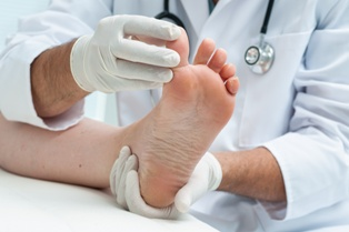 Ingrown Toenails: What You Need to Know