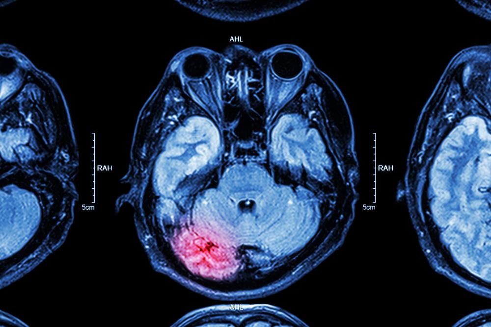 a traumatic brain injury (TBI) causing vision loss