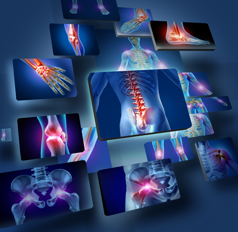 x-rays of common injuries after car accidents