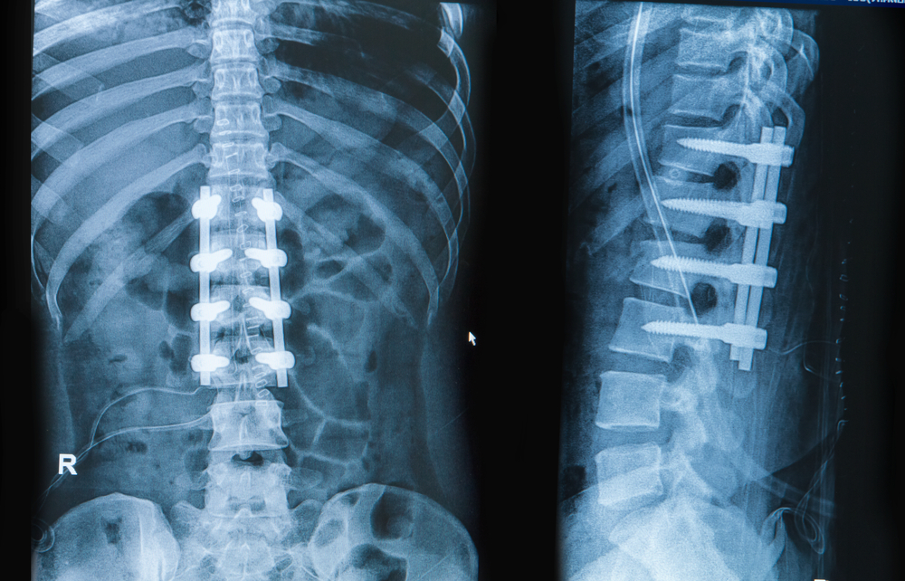 spine fusion after car accident kansas city missouri.jpg