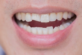 Dental Injuries Caused by Car Accident