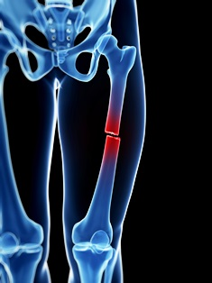 broken bones after motorcycle crash