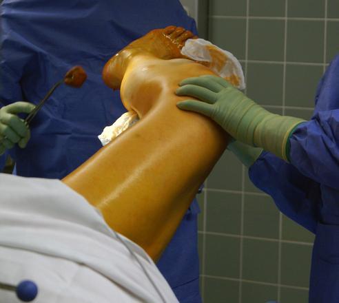 Atlanta Surgical Error