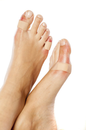 Painful foot blisters