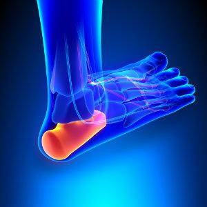 Xray of heel spur