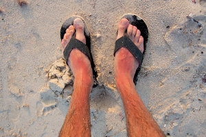 Sunburn on legs and feet