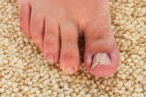 Image of a painful ingrown toenail