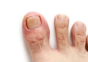 Image of an ingrown toenail