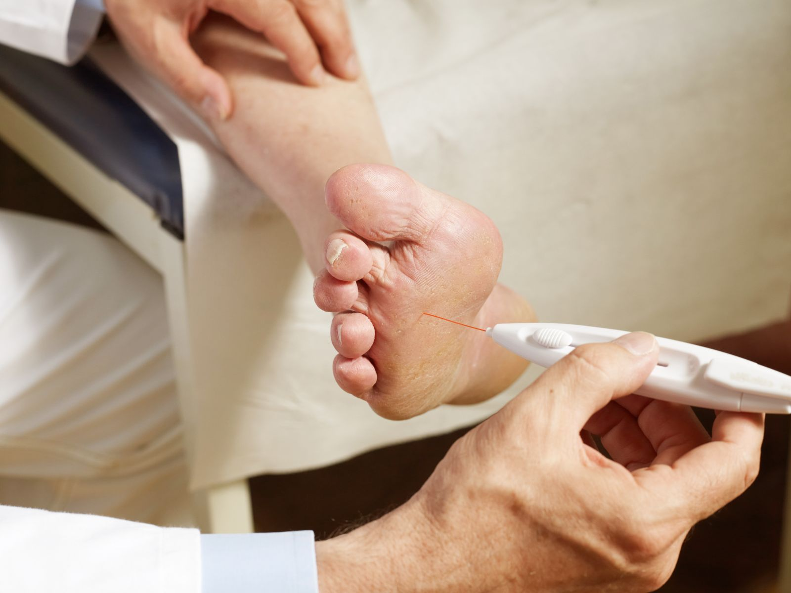 Doctor examining a diabetic patient's foot