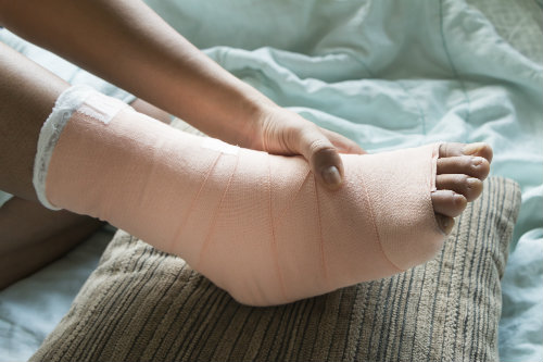 We make recovery from bunion surgery easy!