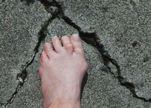 Certain lifestyle choices exacerbate bunions. Try these tips to prevent them from getting worse.