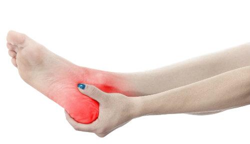 Bursitis can be in your heels