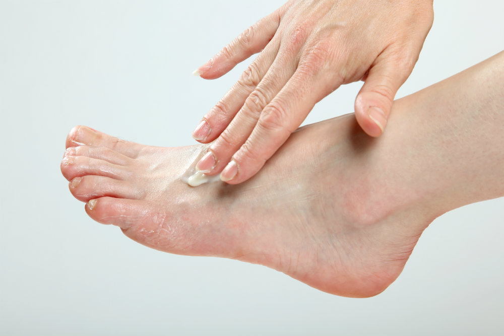 Finish your treatment plan to get rid of athlete's foot!