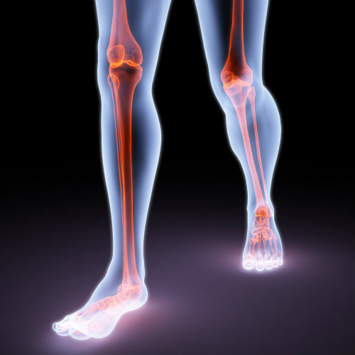 How bad biomechanics affect you