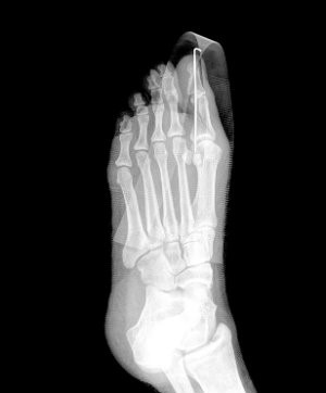 Stress Fracture