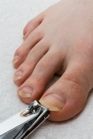 Curled In Nails You Probably Have Had An Ingrown Toenail At Some Point Your Life The Problem Usually Occurs Great Toe And It Can Really Put A
