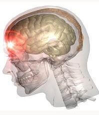 Dallas Texas Traumatic Brain Injury Lawyer The Ashmore Law Firm