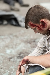 A truck accident head injury requires quick attention, both from a doctor and an attorney
