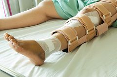 Car accidents often result in damage to the legs and lower extremities