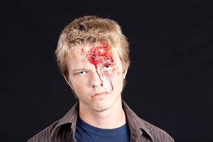 A facial injury from a truck accidents can have severe psychological consequences