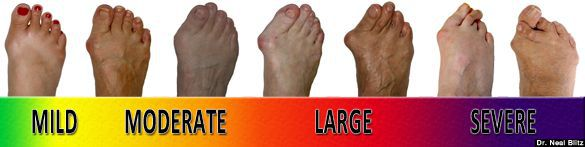 stages of bunion