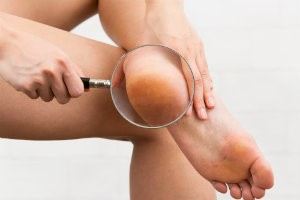 Examining feet